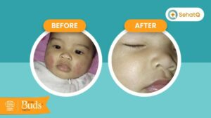 cara-memilih-jenis-skin-care-untuk-kulit-sensitif-yang-tepat-bagi-si-kecil-budsorganics-babyempire